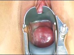 beautiful and creamy pink cervix through a metal speculum